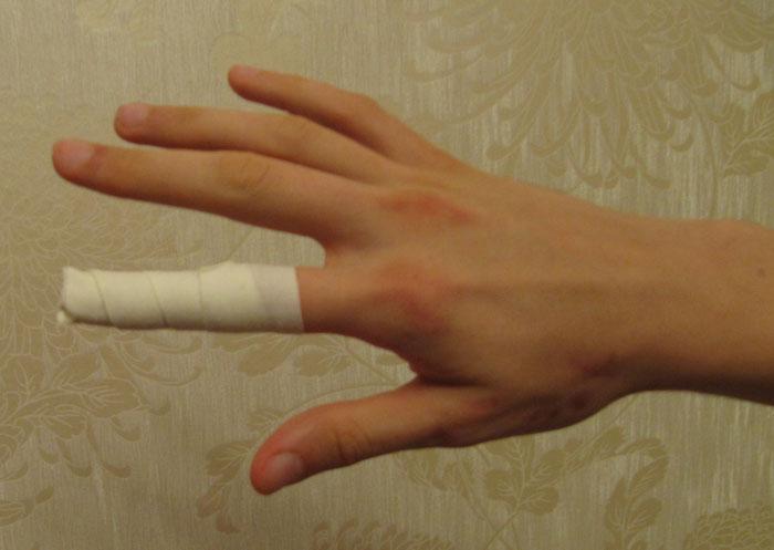 Что делать если выбила палец мячом