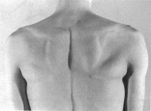 Значительная атрофия правой подостной мышцы у профессионального волейболиста.